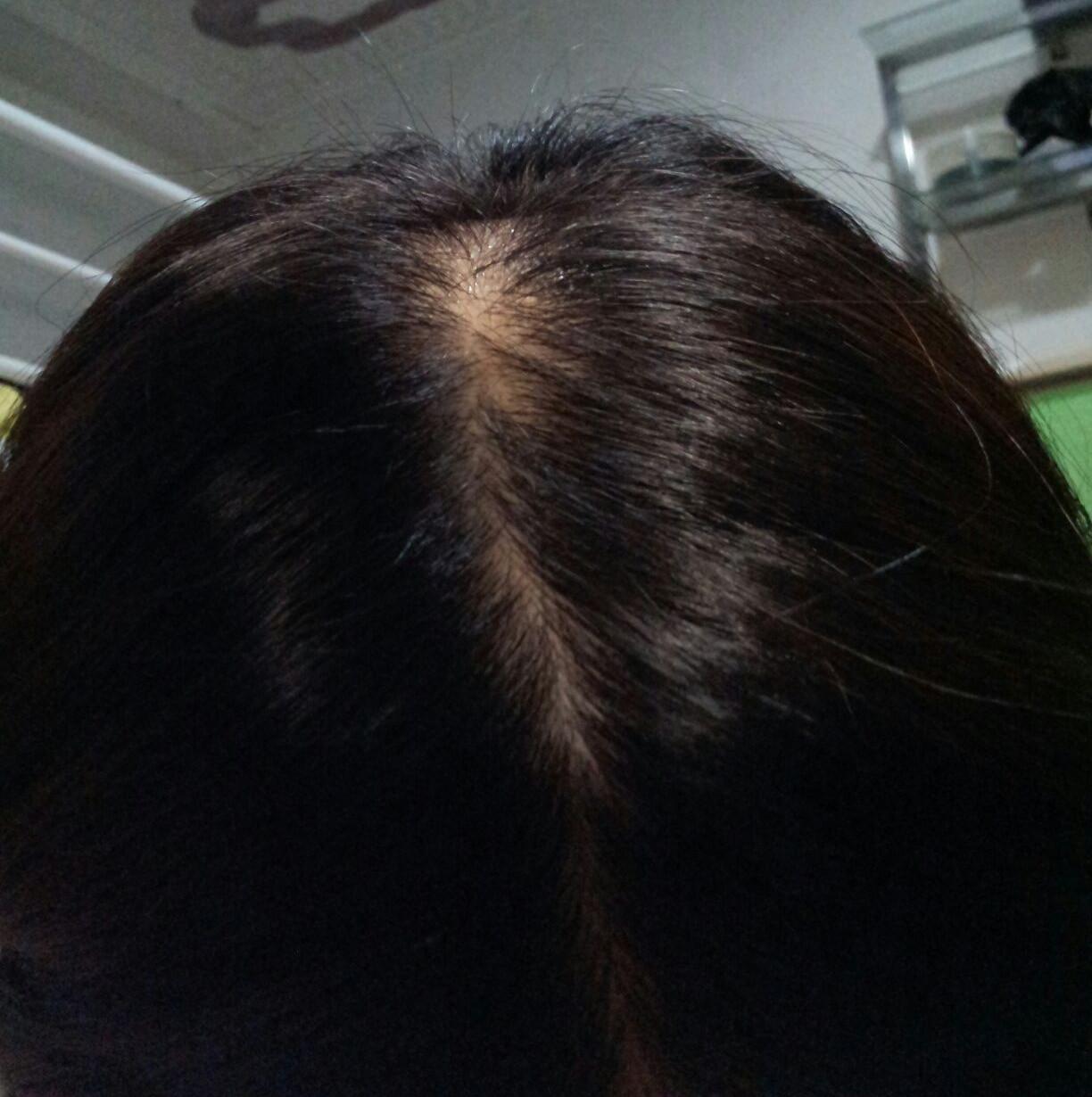 头顶的头发拔了要多久才长出来图片