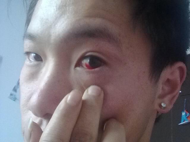 怎么睡醒一觉后发现眼睛红了一半,这是怎么回事呢?