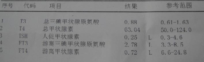 甲亢治疗后出现ft3,ft4,tsh低,现在是什么情况?