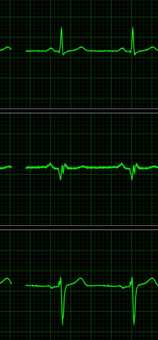 请问这是心电图的哪三种波形,怎么读懂