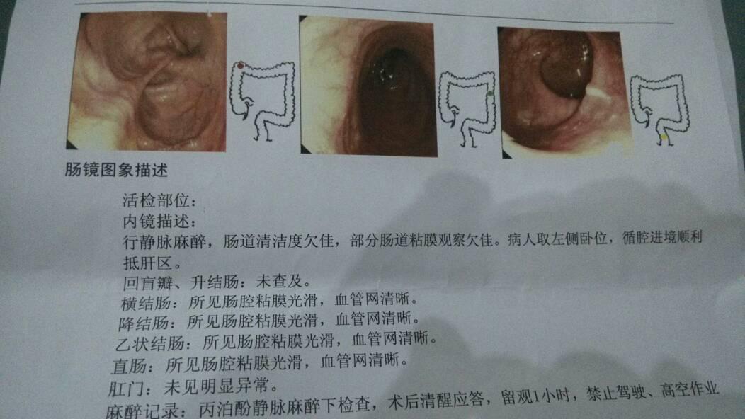 今天去做无痛肠镜,医生说到回盲部进不去,这是什么原因?
