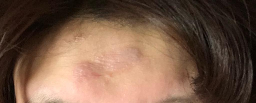 额头被卷发棒烫伤医生给我开保肤伞几个意思图片