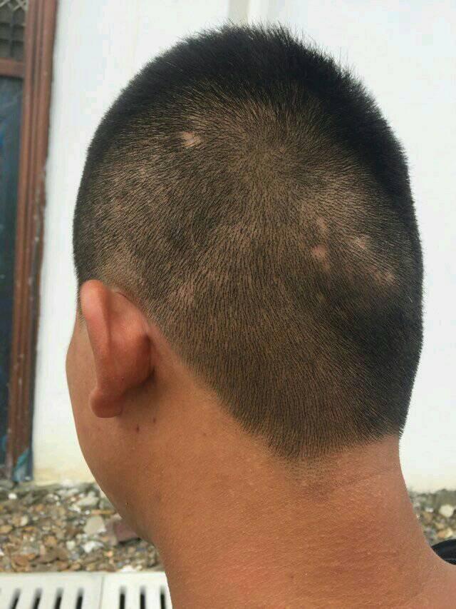 不长头发的一小块是什么意思呢 头部没受过伤 是赖子吗.