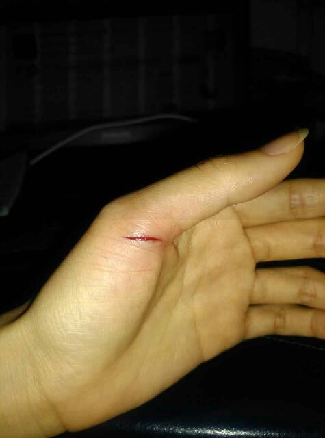 请问开晚上鱼罐头刮伤了手流了一点血,也清洗过流的血