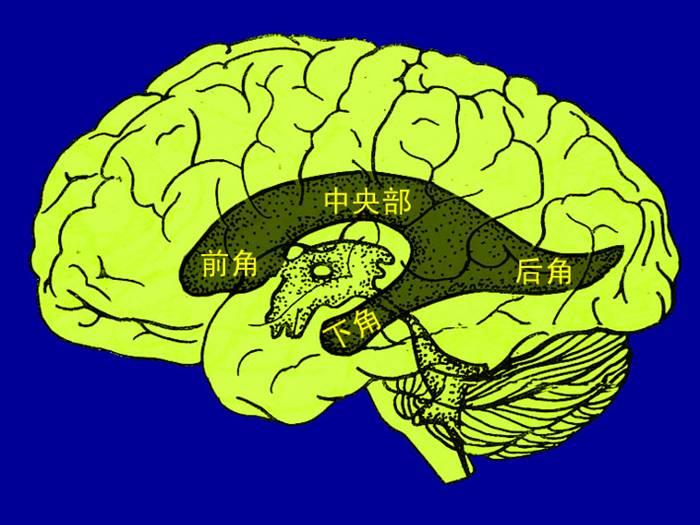 谁有大脑结构图?