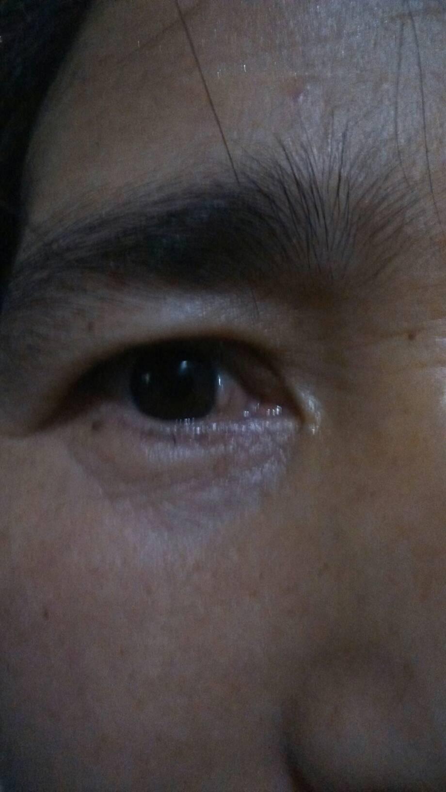 眼球上长了个白色疙瘩_我妈妈眼睛里前几天出了个小肉疙瘩怎么办…谢谢各位眼科医生了