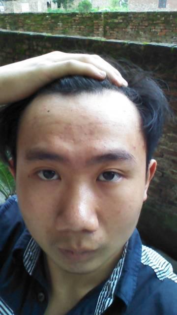 额头两边头发凹进去 少头发 适合什么发型图片