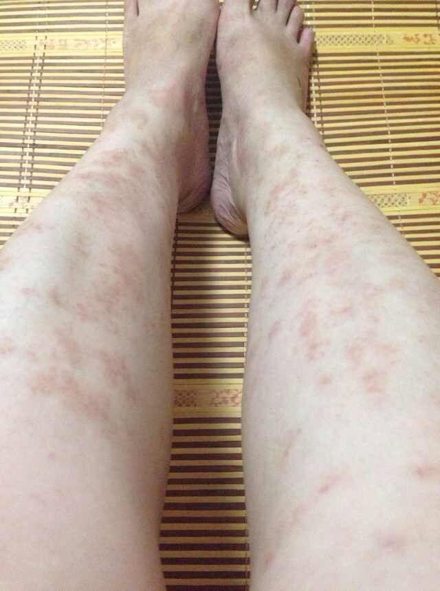 腿上出现类似冻疮的红点,求救网友病因.
