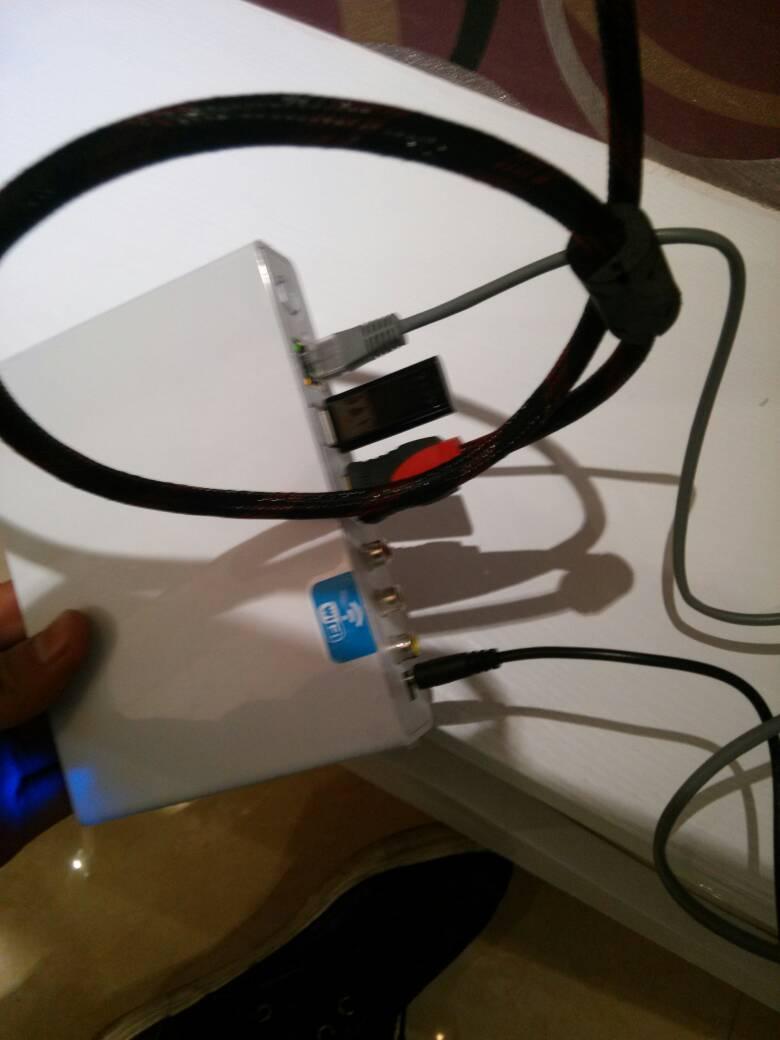 网线连接网络电视机顶盒   机顶盒上有红黄白 三种线的插口   连接