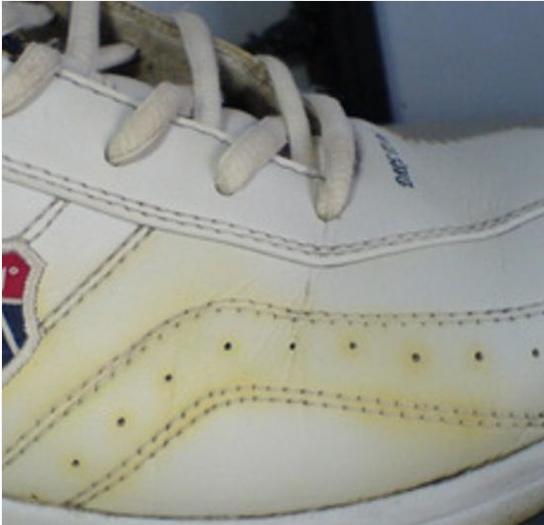 鞋子的白边 变黄了 怎么办?