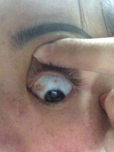 单只眼球充血_最近老是熬夜,刚刚发现眼球充血,感觉好像有点严重,怎么办?