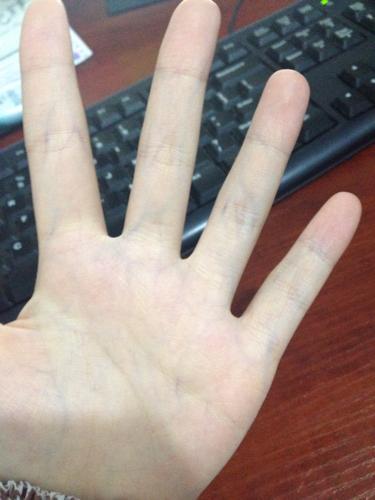 请问,手掌心有青色紫色那种筋是因为体内有毒素?拍出来不是很明显.