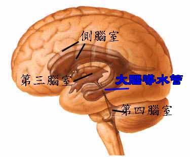 大脑图片 结构图
