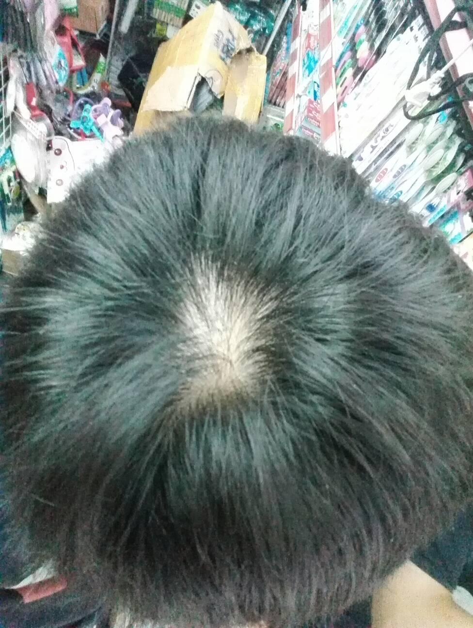 我16岁,以前老是喜欢扯头顶的头发,现在头顶的那个漩涡都没有头发了