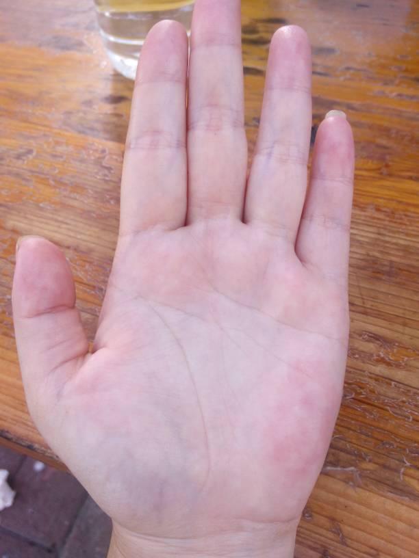 请问我手掌血管有紫色跟青色的是怎么回事