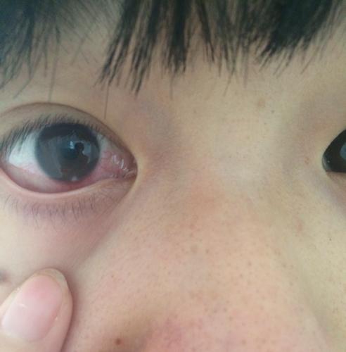 黑眼球上有个白点图片_眼球下方有个白点 好几天.在滴盐酸洛美沙星 碰到有点