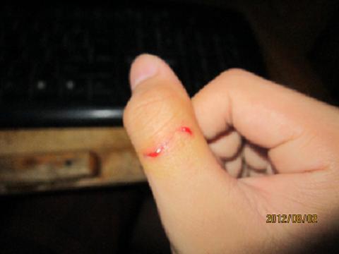 手绘伤口图片