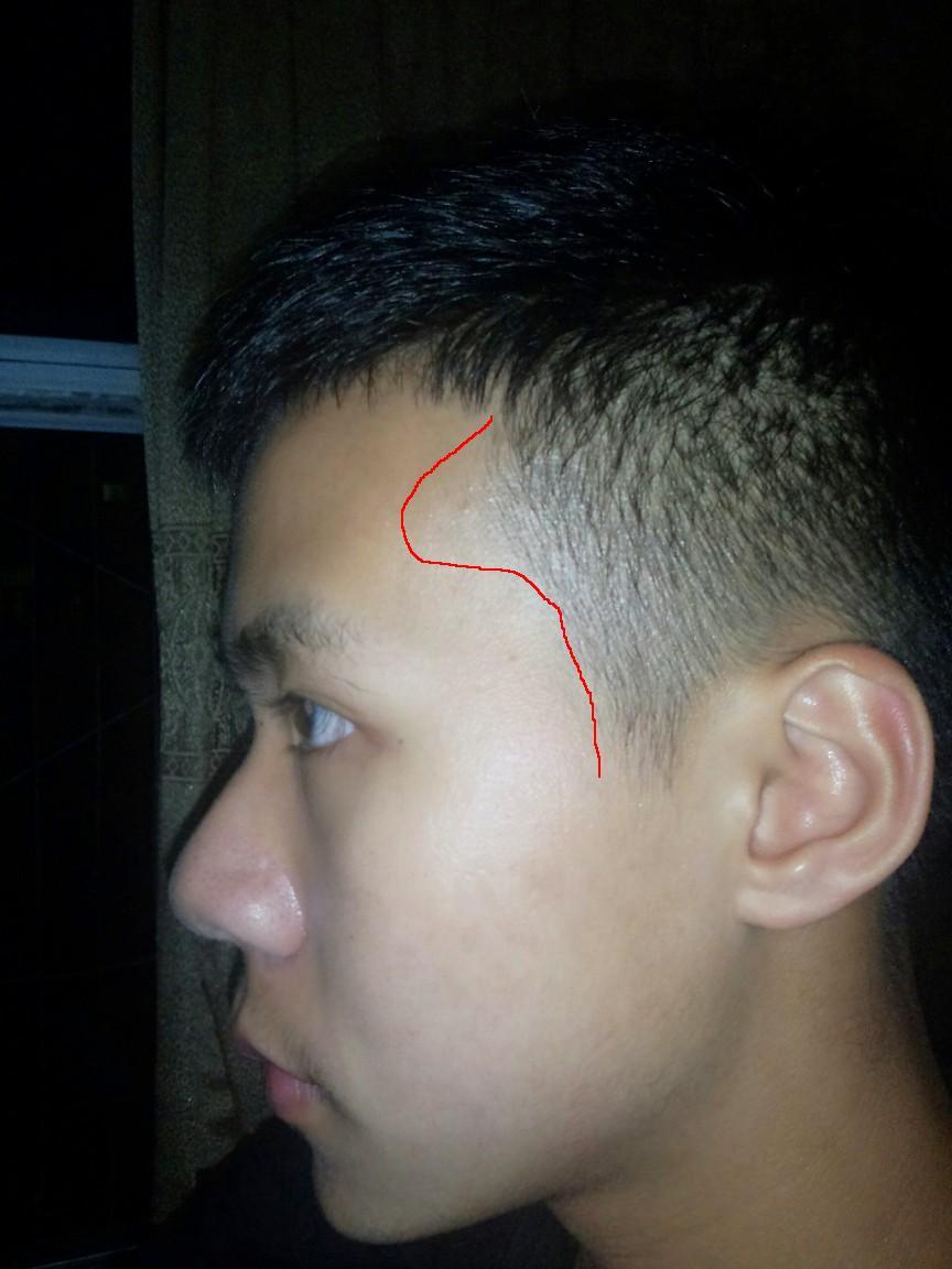 我是男生,17岁,这几年开始注意到自己额头两侧头发的发际线和同学都图片