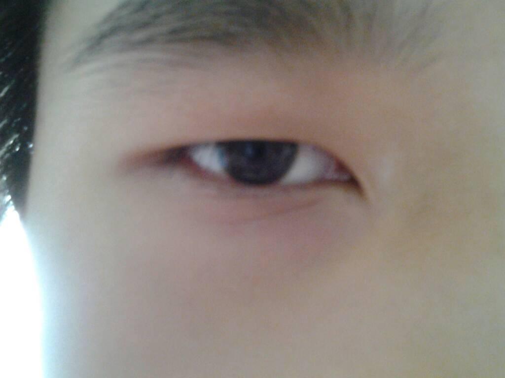 黑眼球上有个白点图片_我眼睛平视时眼睛只露出黑眼球的一半多一点(从黑眼球