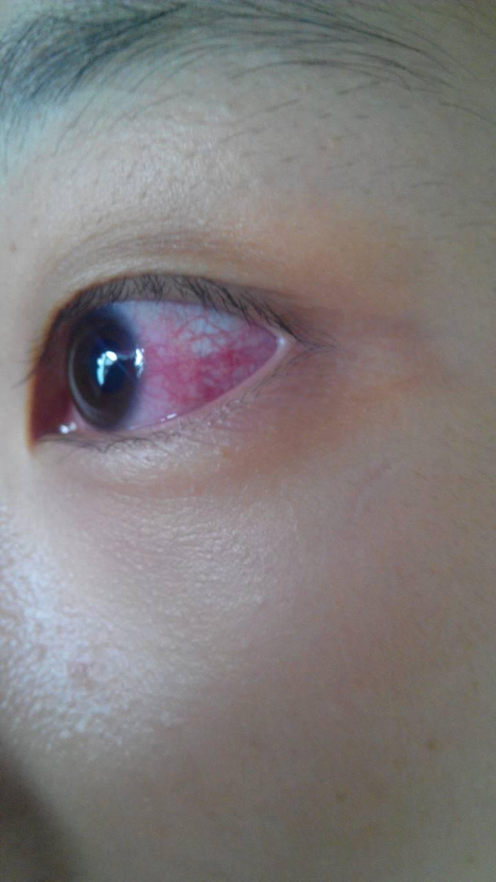 眼睛充血但是不痛不痒_眼睛充血,出了轻微胀痛就没别的症状了,压迫眼球是血丝会褪色,请问是