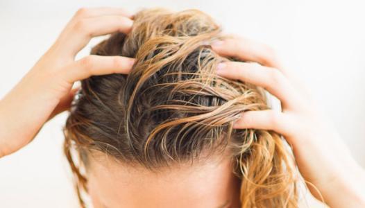 头皮油腻,头发太贴头皮怎么办?