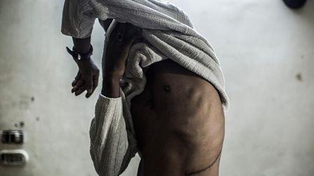 如何看待肆虐各国的人体器官偷盗?