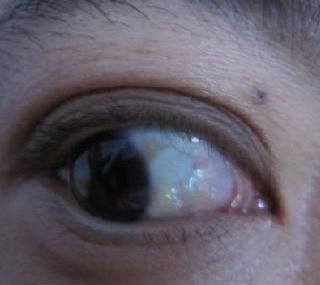 黑眼球上有个白点图片_人眼的\