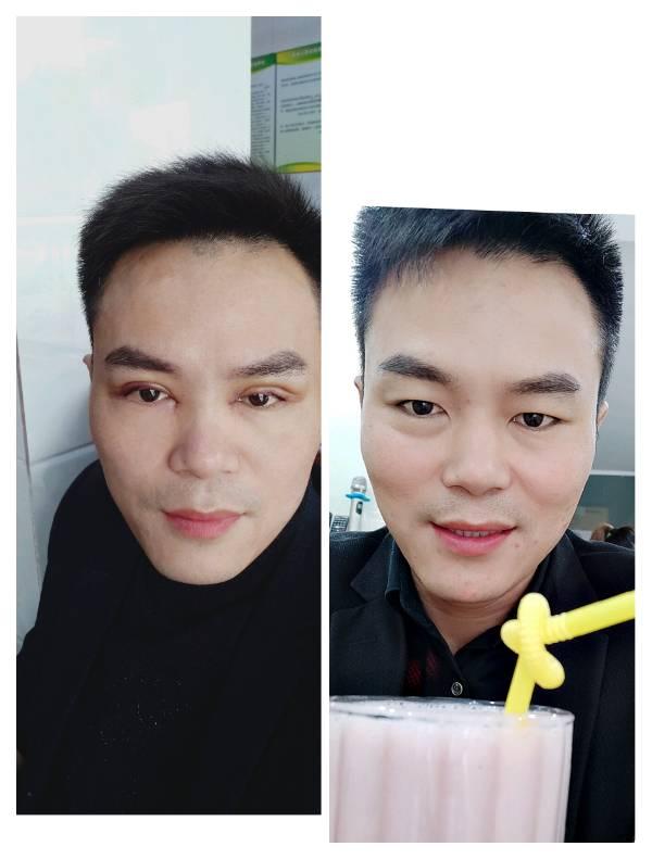 双眼皮手术后,眉毛与眼睛距离太近怎么办?