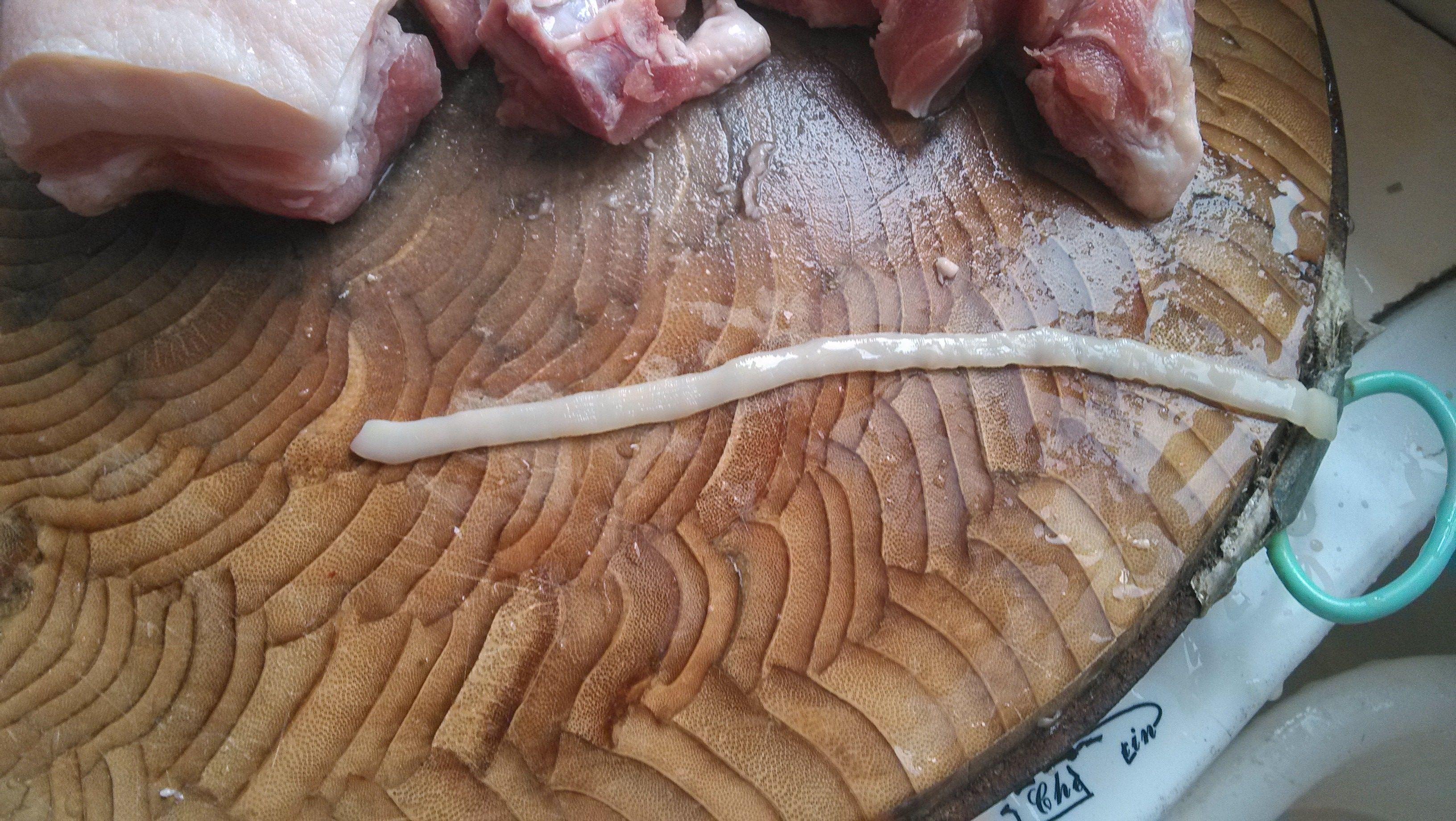 肚子内脏结构图片