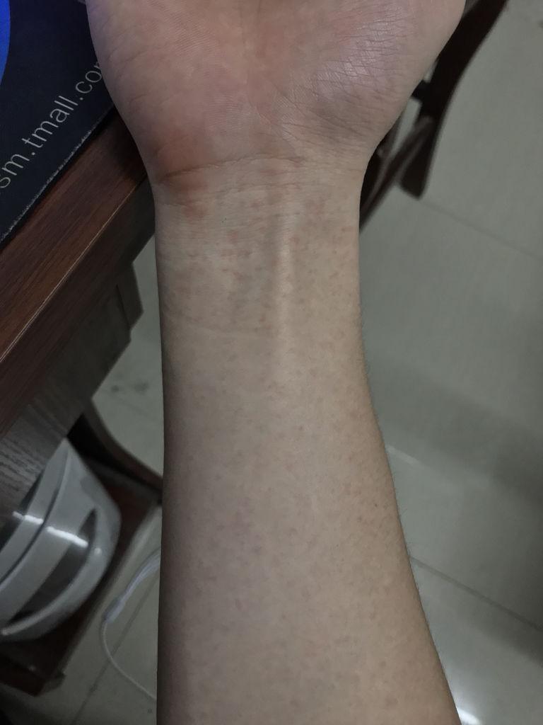 喝酒的时候会脸红,但是以前都是睡一觉就恢复了的 1条回答  皮肤过敏图片