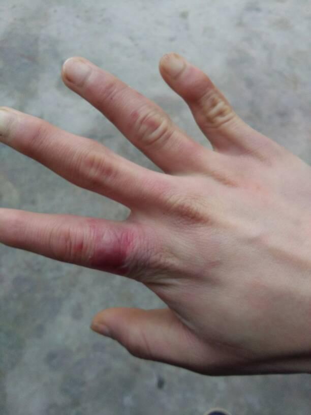 手冻了有什么好方法吗