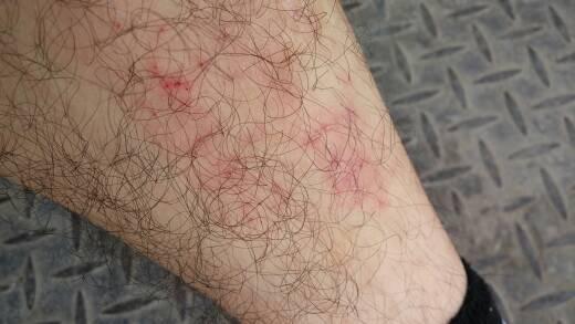 每到夏天我的小腿就和图片里一样好多红点点,很痒,抓破皮都不管用,抓