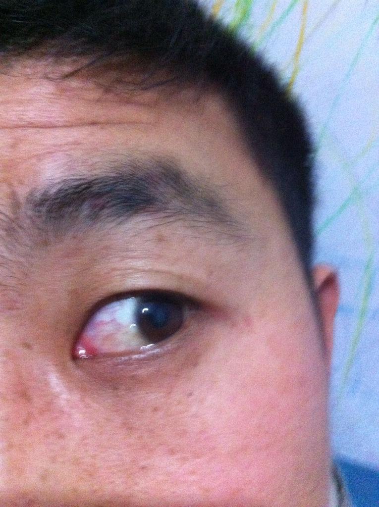 眼球上长了个白色疙瘩_白眼球长个白疙瘩像小米一样大