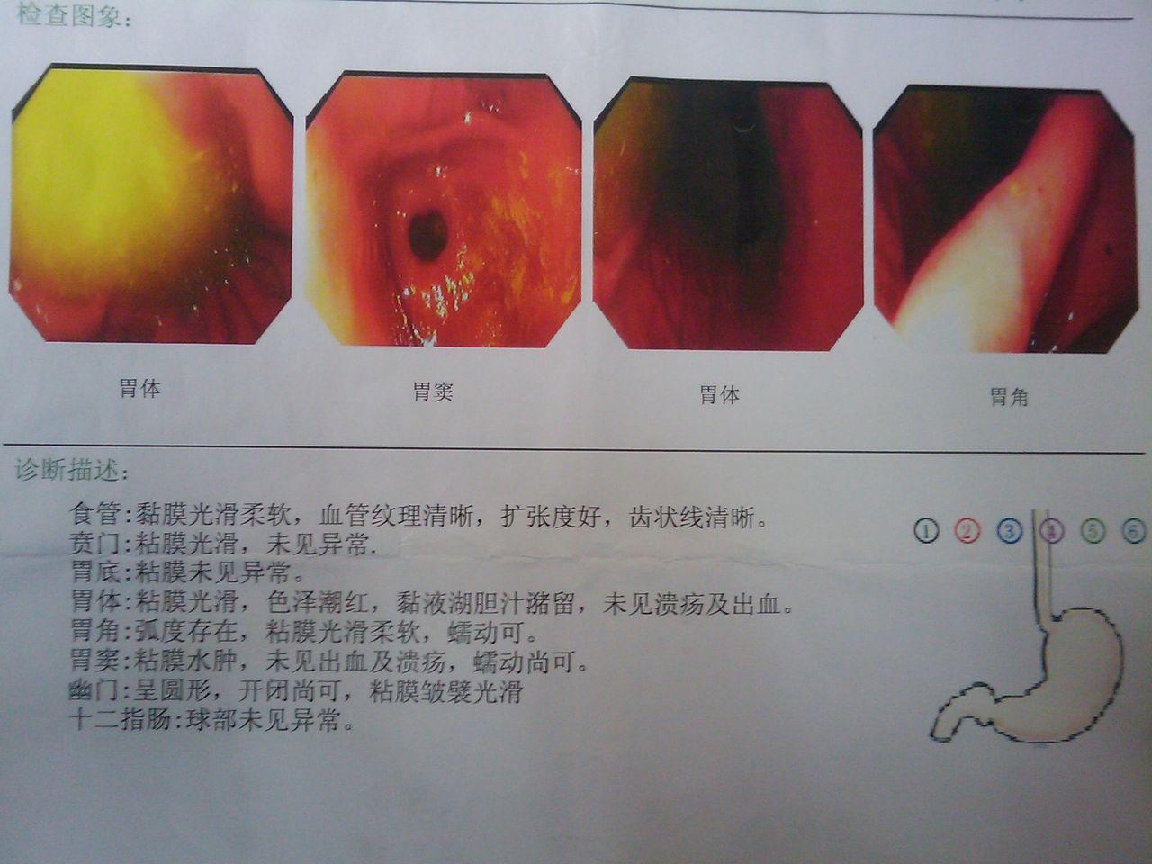 胃镜详细结构图