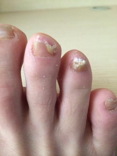 梦见脚趾甲被虫子吃完了