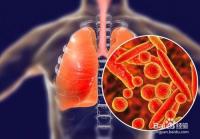 如何防治新型肺炎病毒?