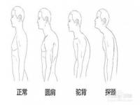 如何轻松改善圆肩驼背?