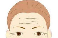 抬头纹祛除方法