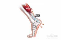 跟腱炎是哪个部位图