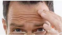 怎样消除额头纹