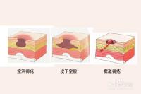 空洞型褥疮最佳治疗方法