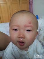 幼儿出疹子的处理方法