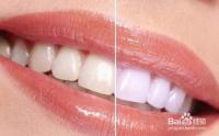 怎么刷牙牙齿会变白