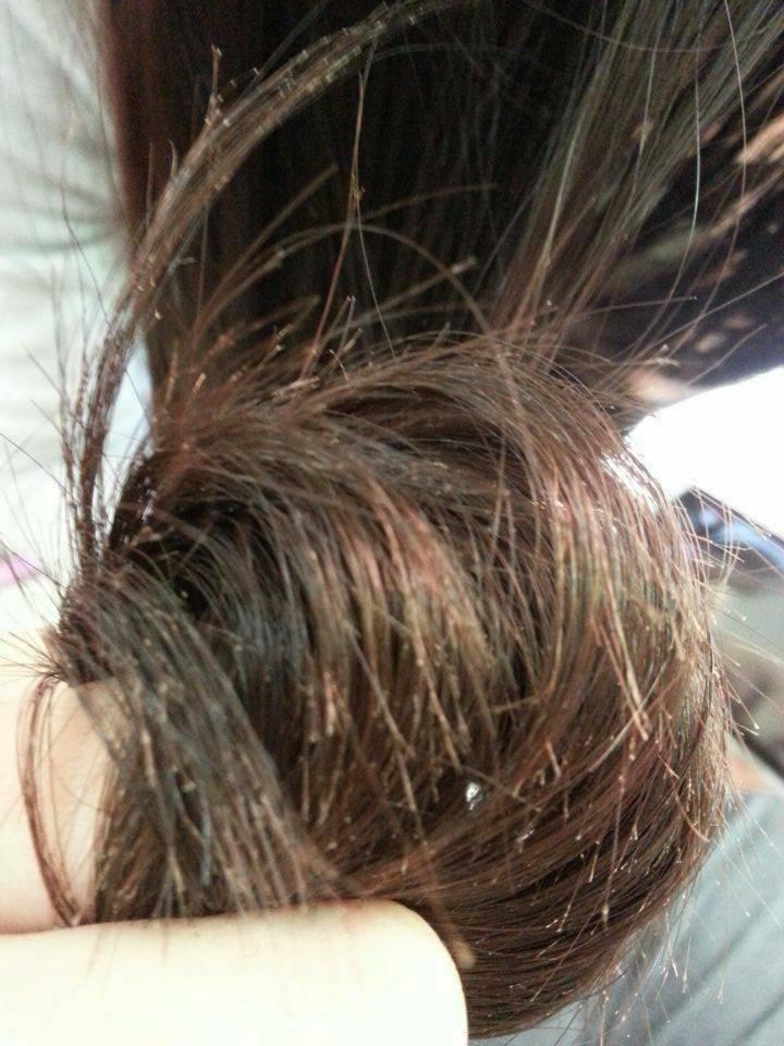 头发烫伤成这样会不会影响生长?总觉得头发没有长过图片