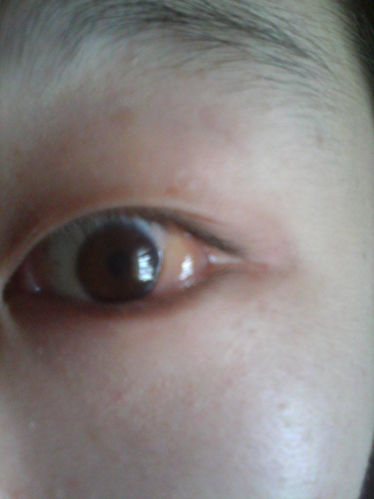 眼球上长了个白色疙瘩_病情描述(发病时间,主要症状等): 之前左眼外眼角内侧涨了一个小疙瘩