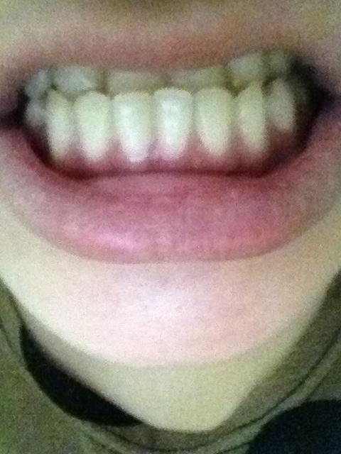 地包天骨性和牙性的区别,及费用,有经验者请回答.图片