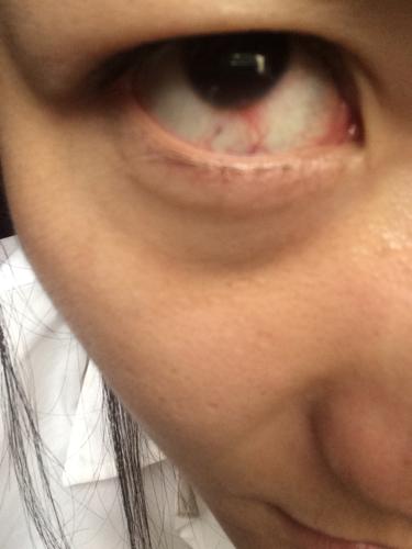 眼球上长了个白色疙瘩_就是在黑色的眼球的边缘长了一个白色的疙瘩,还有血丝