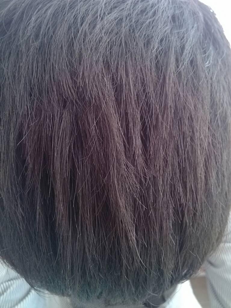 头发分叉,13岁,怎么办?图片