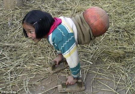 无腿篮球女孩怎么回事儿