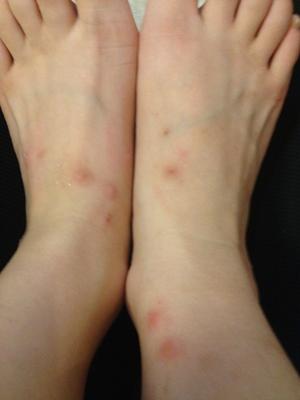 梦见蚊子咬脚被打死